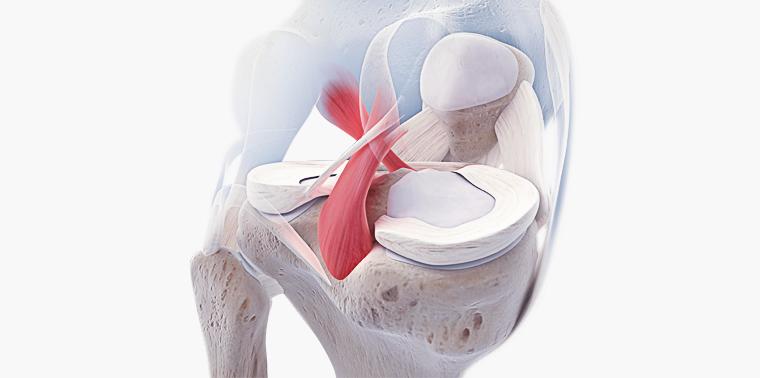 lesão do ligamento cruzado anterior
