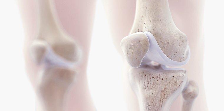 representação dos ossos do joelho com lesão de cartilagem localizada na patela